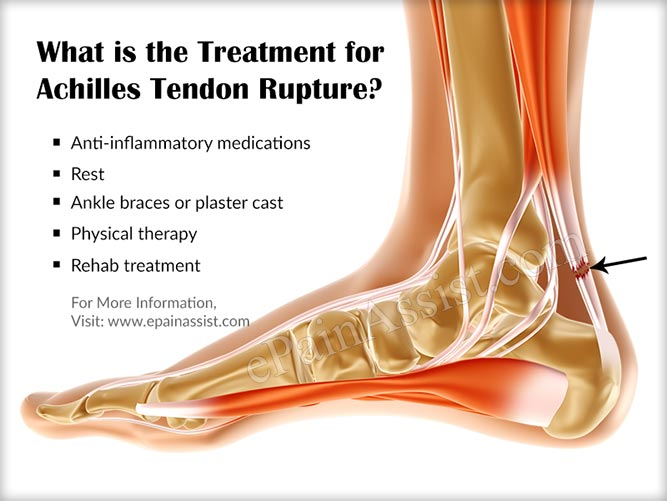 What is the Treatment for Achilles Tendon Rupture?