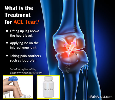 What is the Treatment for ACL Tear?