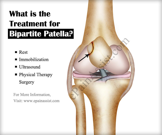 What is the Treatment for Bipartite Patella?