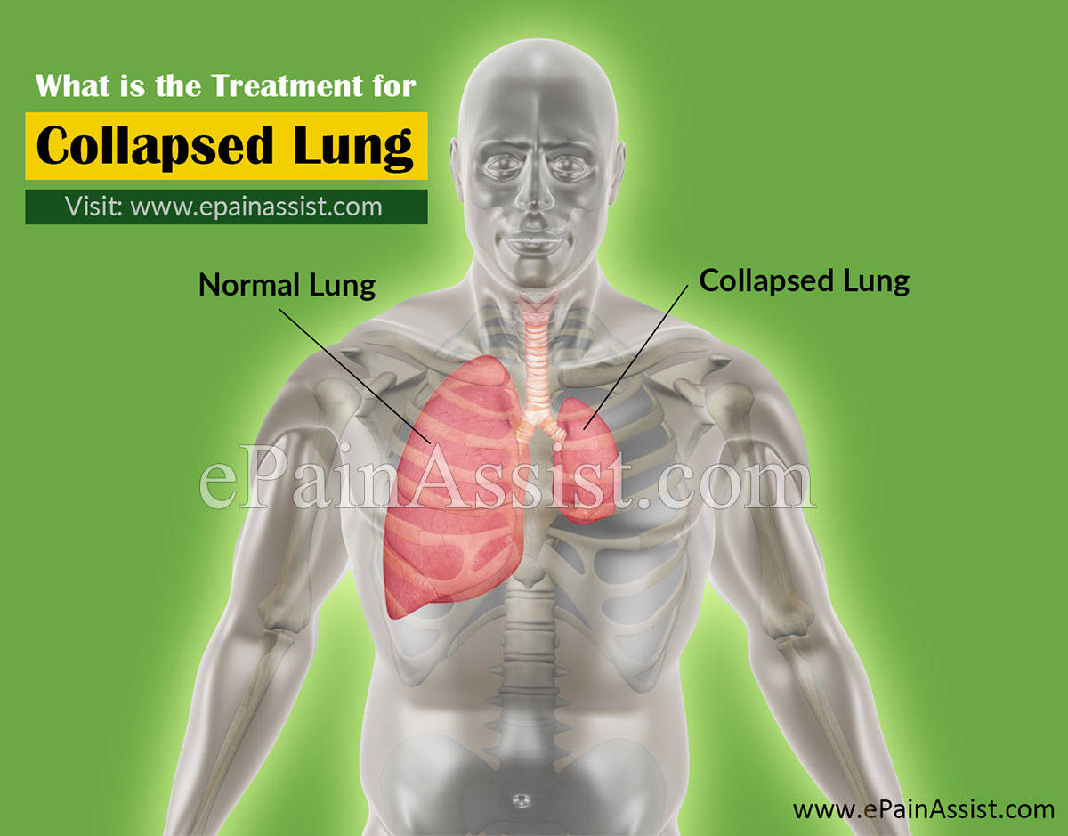 What is the Treatment for Collapsed Lung (CL) or Pneumothorax?