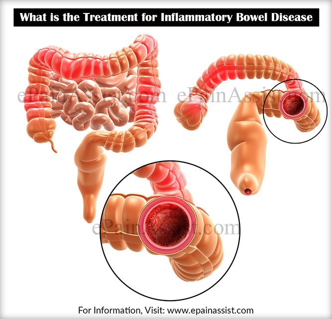 What is the Treatment for Inflammatory Bowel Disease or IBD?