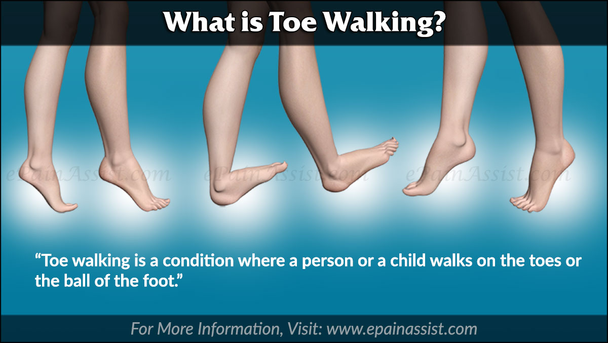 What is Toe Walking?