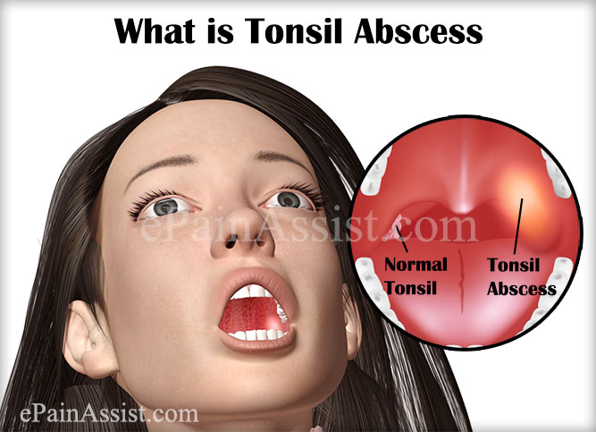What Is Tonsil Abscess Or Throat Abscesstreatmentrecovery