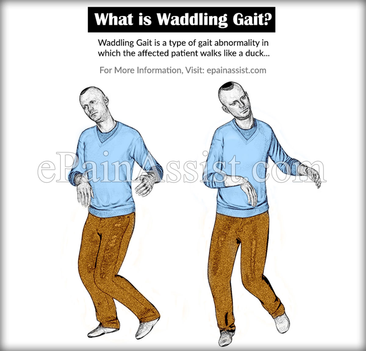 What is Waddling Gait?