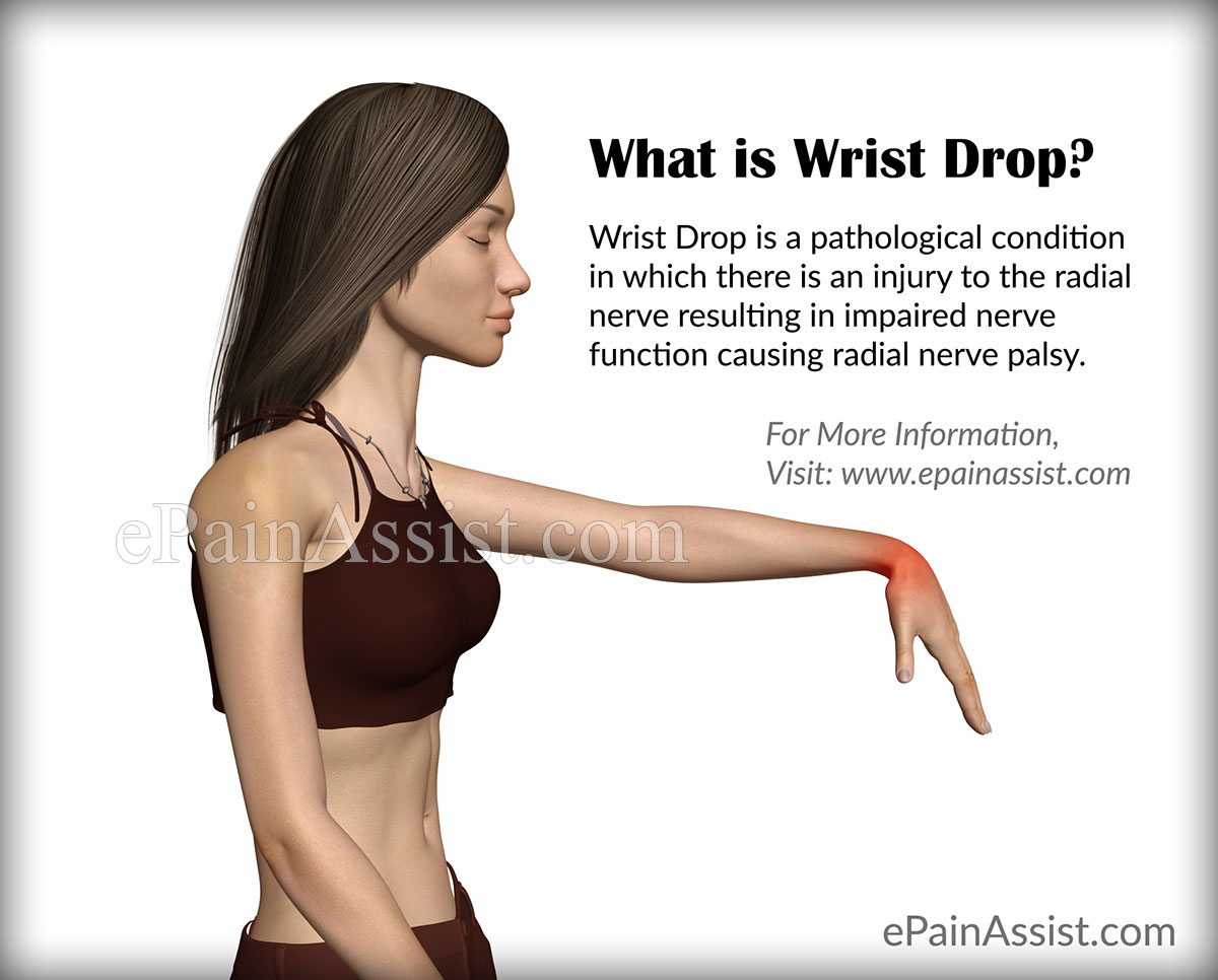 What is Wrist Drop?