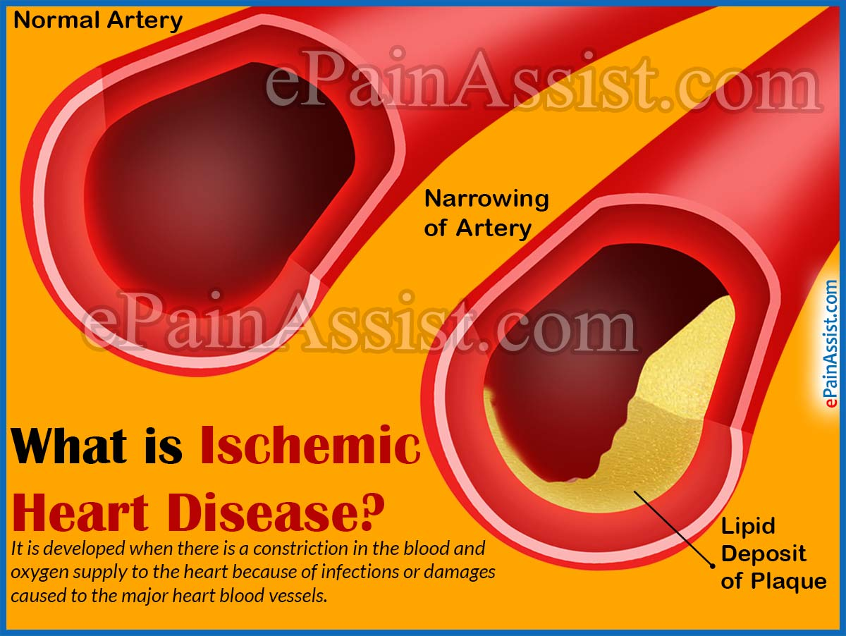 ischemic heart disease causes signs symptoms diagnosis