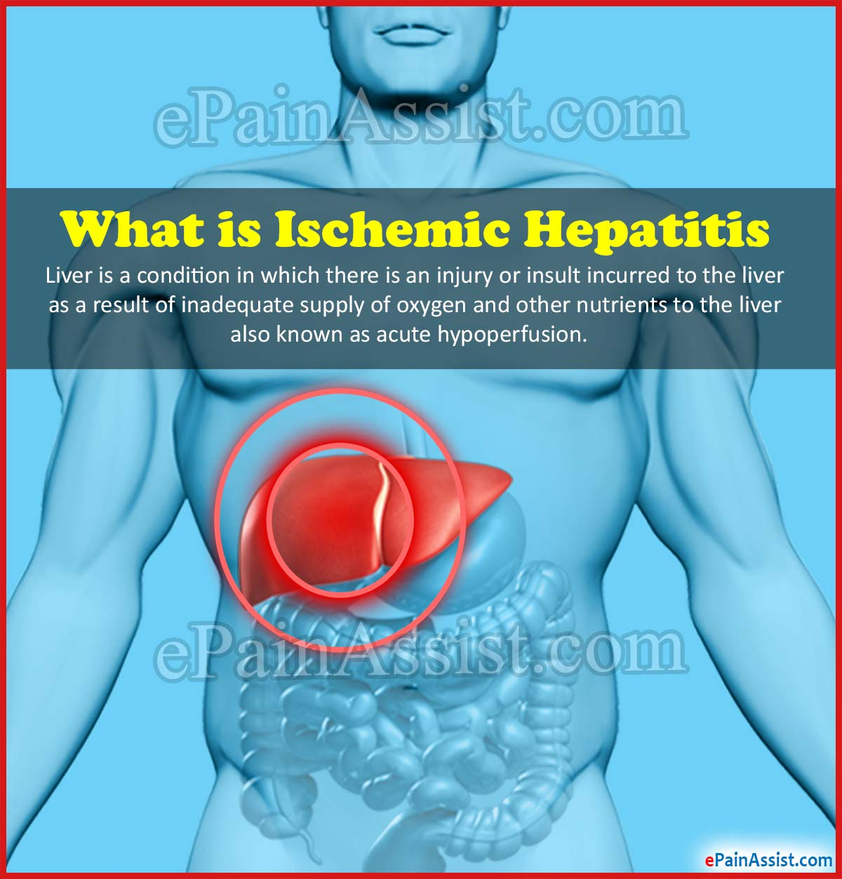 What is Ischemic Hepatitis or Shock Liver?