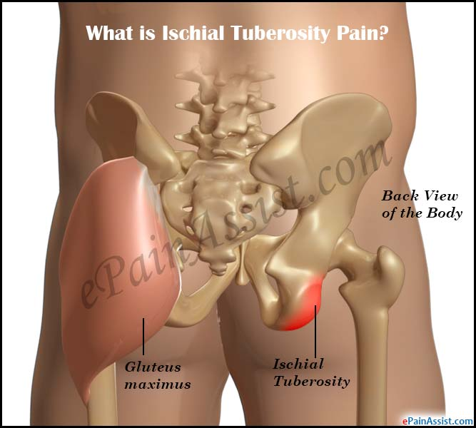 ischial tuberosity pain causes symptoms treatment rh epainassist com Si Joint Pain Symptoms Buttocks Pain in Left Buttock Area