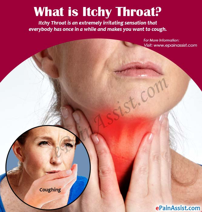 What is Itchy Throat?