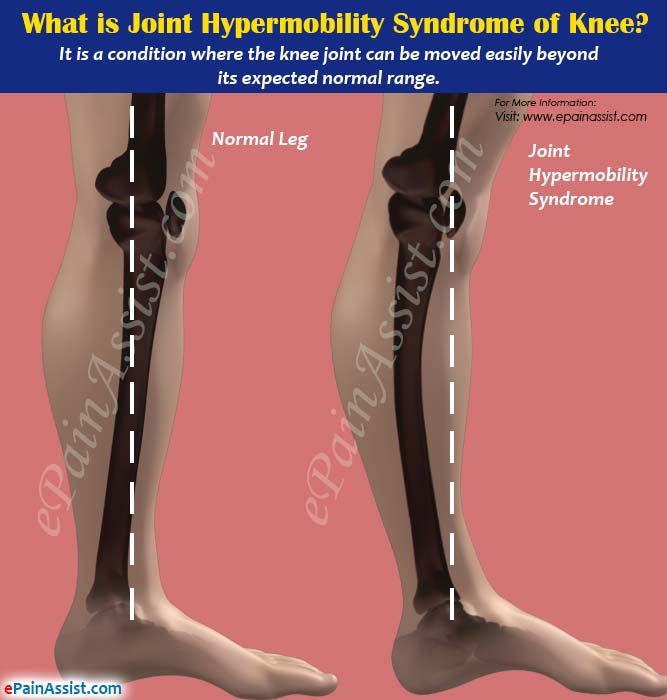 What is Joint Hypermobility Syndrome of Knee or Double Jointed Knee?