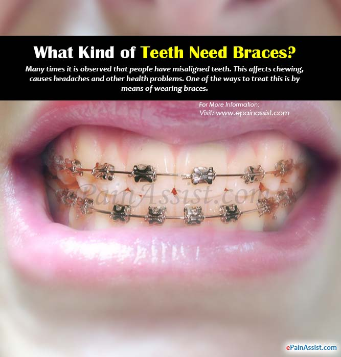 What Kind of Teeth Need Braces?