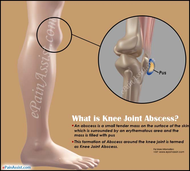What is Knee Joint Abscess?