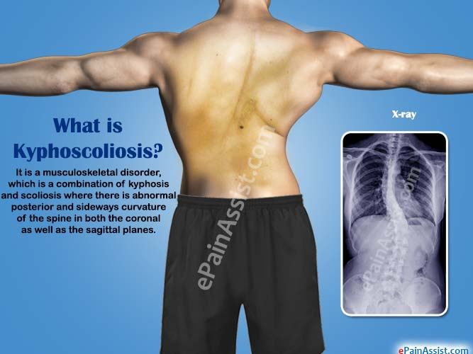 What is Kyphoscoliosis|Causes|Symptoms|Treatment|Surgery ...
