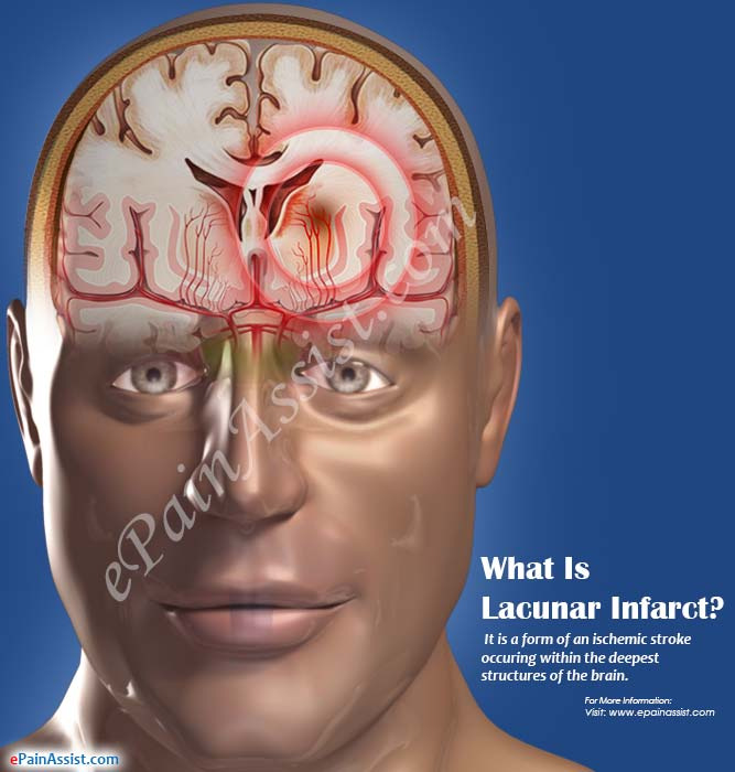 What Is Lacunar Infarct?