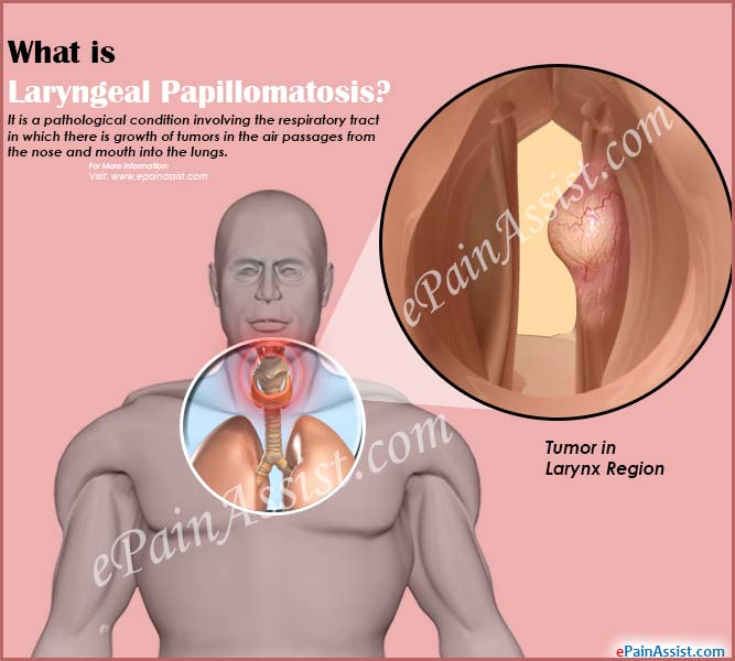What is Laryngeal Papillomatosis?