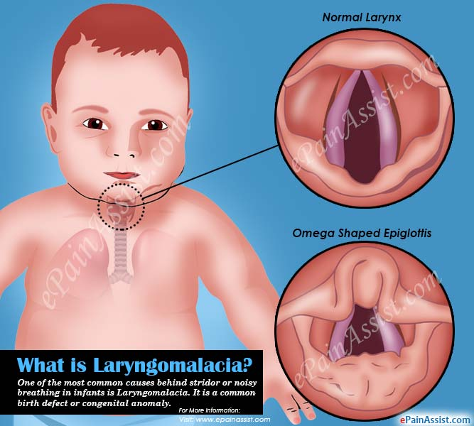 Daskam in addition Watch additionally What Is Laryngomalacia And How Is It Treated also File Tidal Volume in addition Full. on exercise physiology