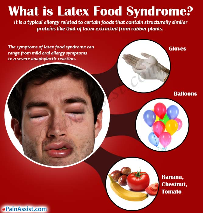Beutefule latex food allergy list student