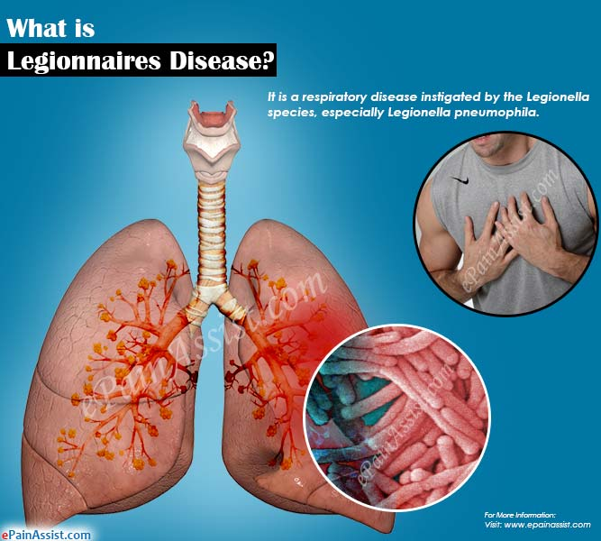 what is legionnaires disease|signs|symptoms|treatment|pathophysiology, Human Body