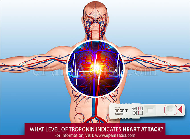 What Level of Troponin Indicates Heart Attack?