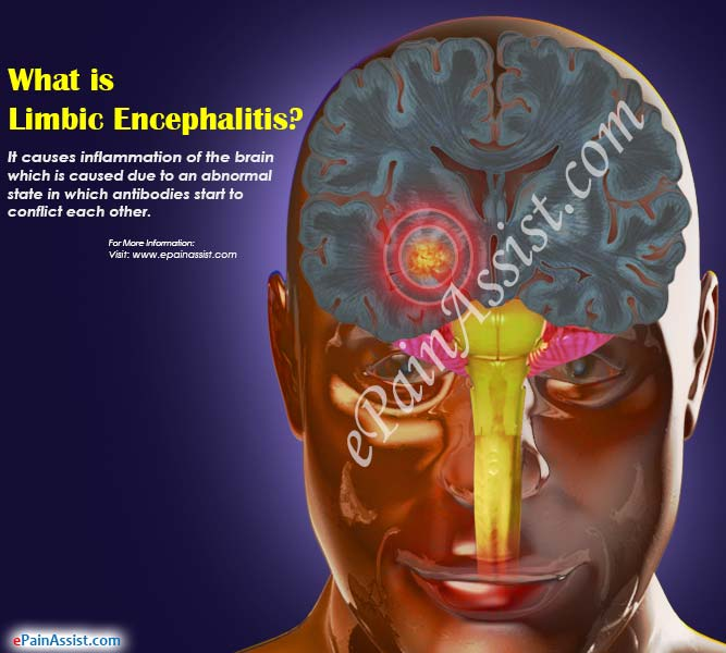 What is Limbic Encephalitis?