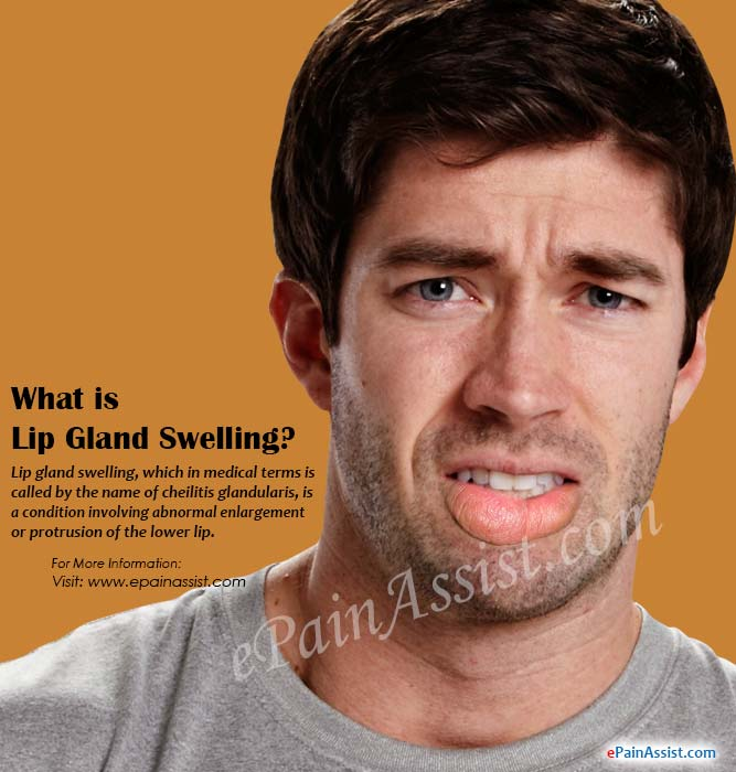 What Causes Lip Gland Swelling?