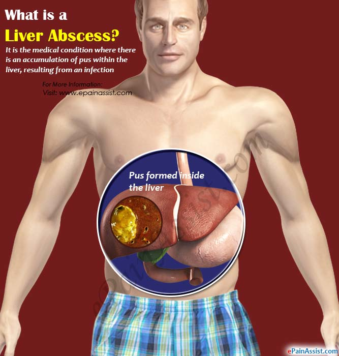 What is a Liver Abscess?