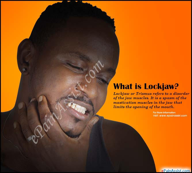What is Lockjaw?