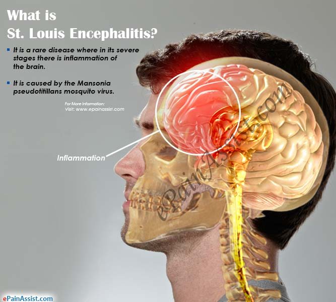 What is St. Louis Encephalitis?