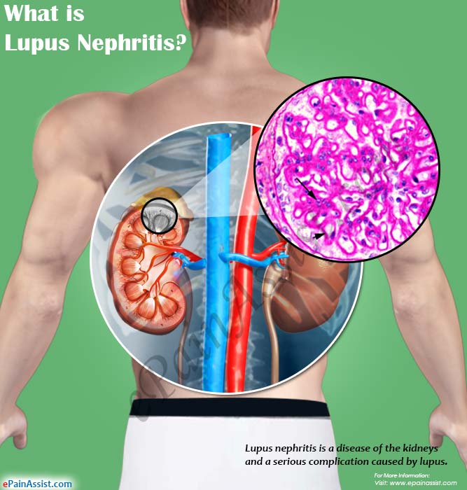 What is Lupus Nephritis?