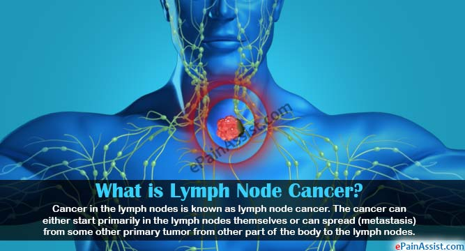What is Lymph Node Cancer?