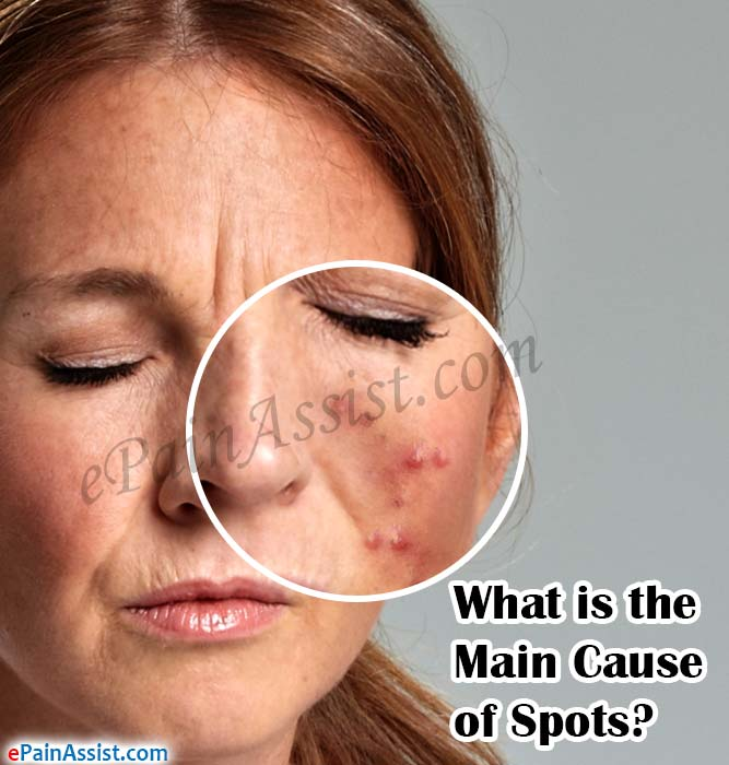What is the Main Cause of Spots?