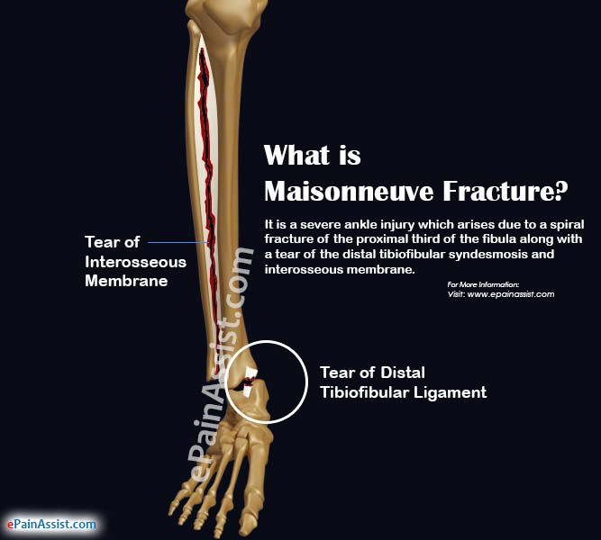 Maisonneuve fracture causes symptoms treatment recovery period for Maison neuve
