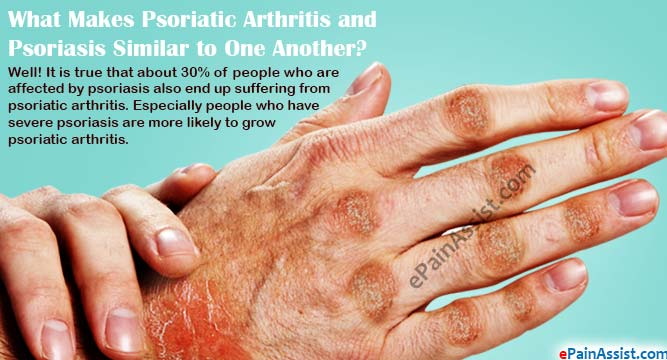 What Makes Psoriatic Arthritis and Psoriasis Similar to One Another?