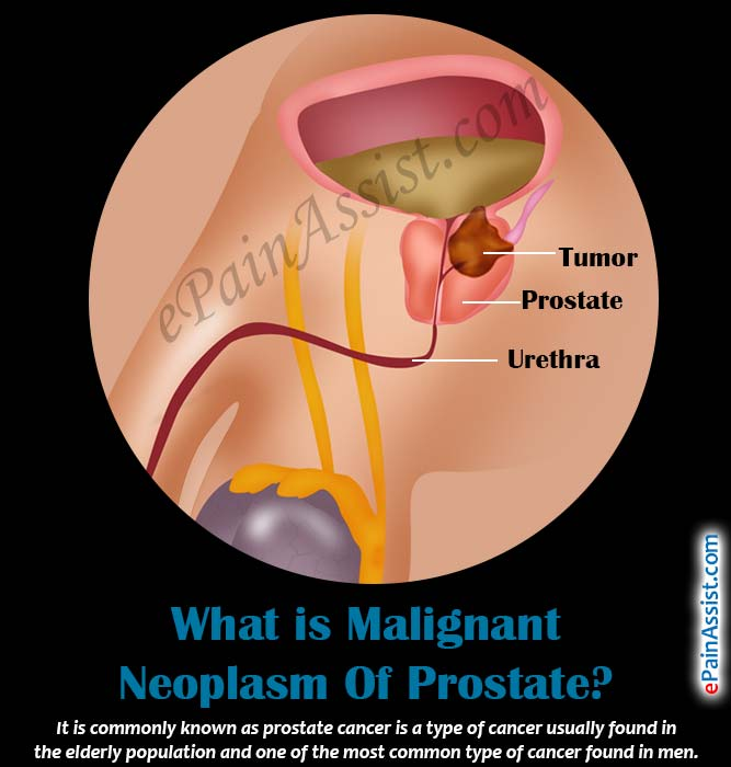 the symptoms and treatment of prostate cancer a malignant disease There are many treatment options for malignant neoplasms of the prostate since it is a slow growing tumor, if it is found in the elderly, the doctor may opt to just observe the patient and monitor psa levels instead of doing any aggressive measures.
