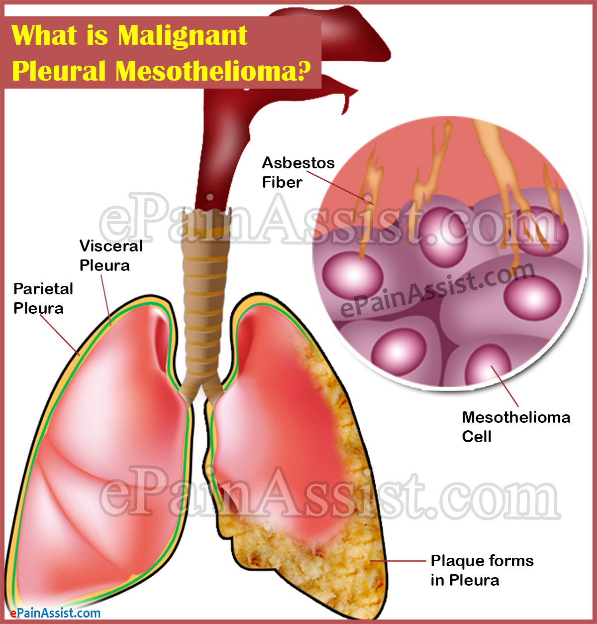 What is Malignant Pleural Mesothelioma?