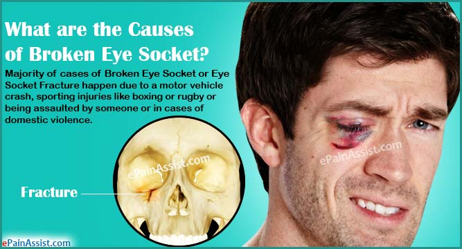 What are the Causes of Broken Eye Socket or Eye Socket Fracture?