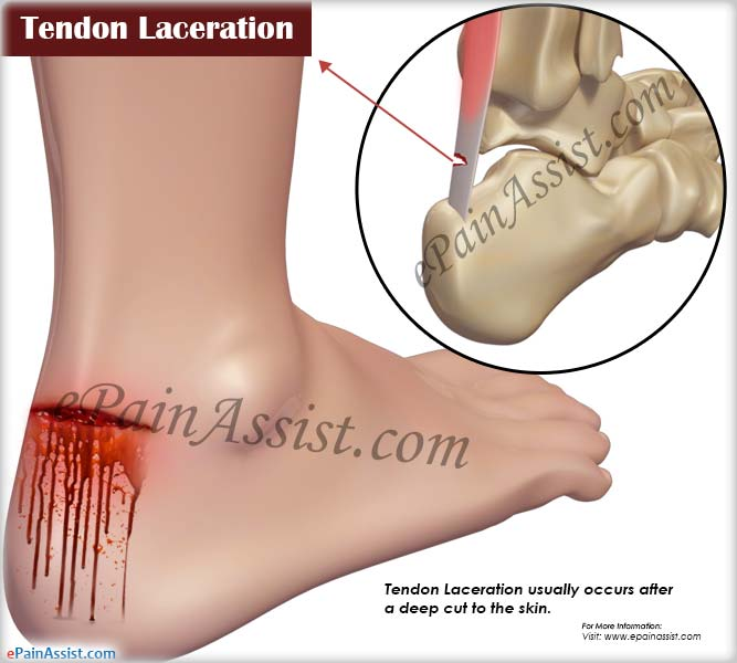 Tendon Lacerationcausessymptomstreatmentrecovery Period