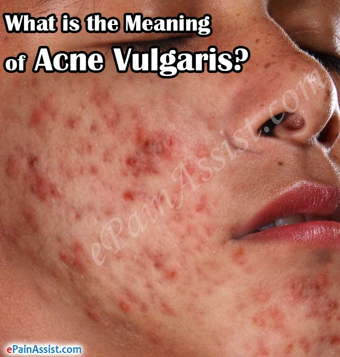 What is The Meaning of Acne Vulgaris?