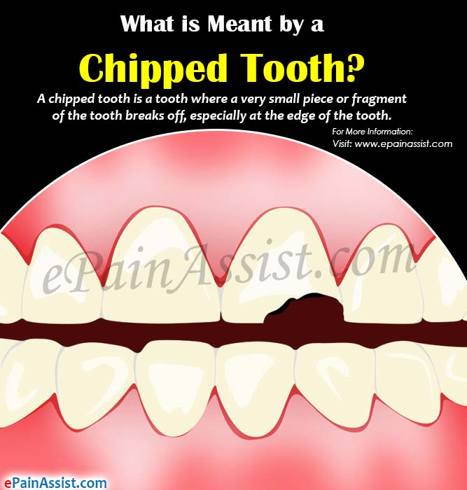 What is Meant by a Chipped Tooth?
