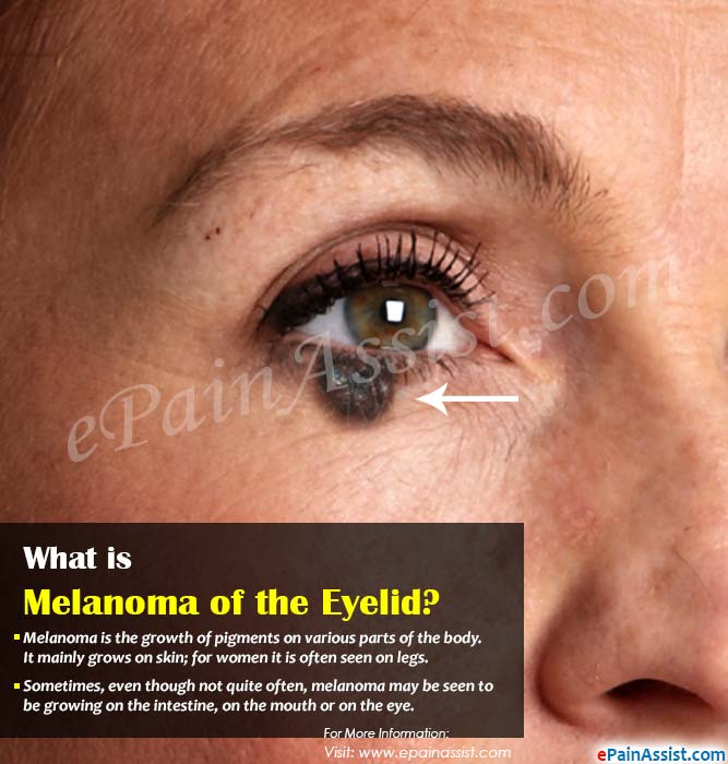 What is Melanoma of the Eyelid?