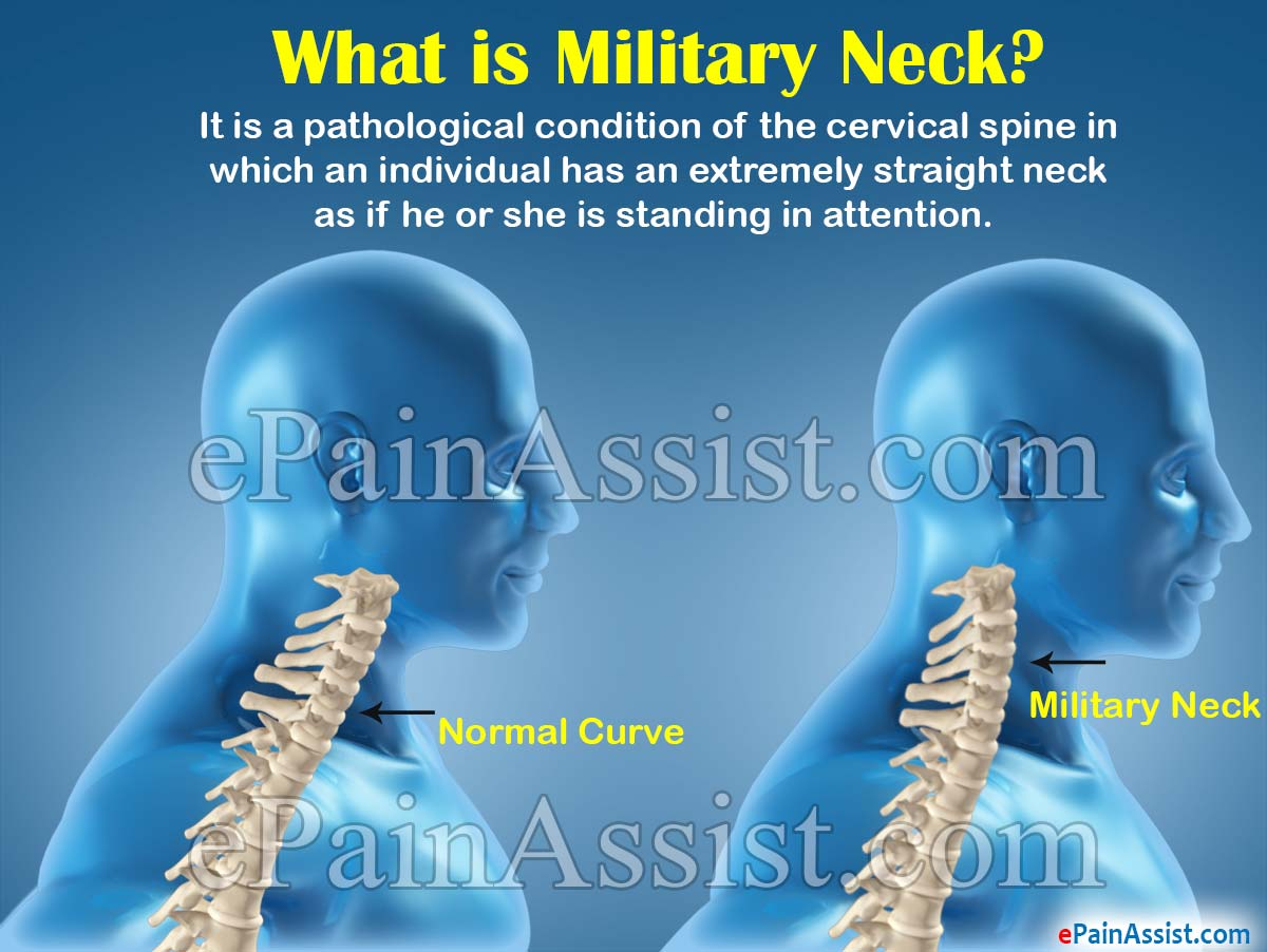 Military Neck Causes Symptoms Treatment Exercise
