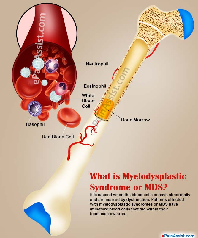 What Is Mds >> What Is Myelodysplastic Syndrome Causes Types Signs Symptoms