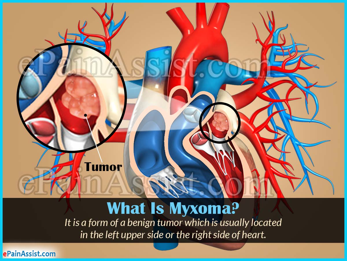 What Is Myxoma?