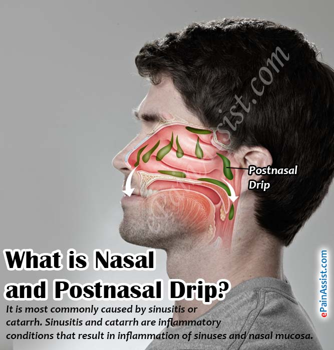 What is Nasal and Postnasal Drip?