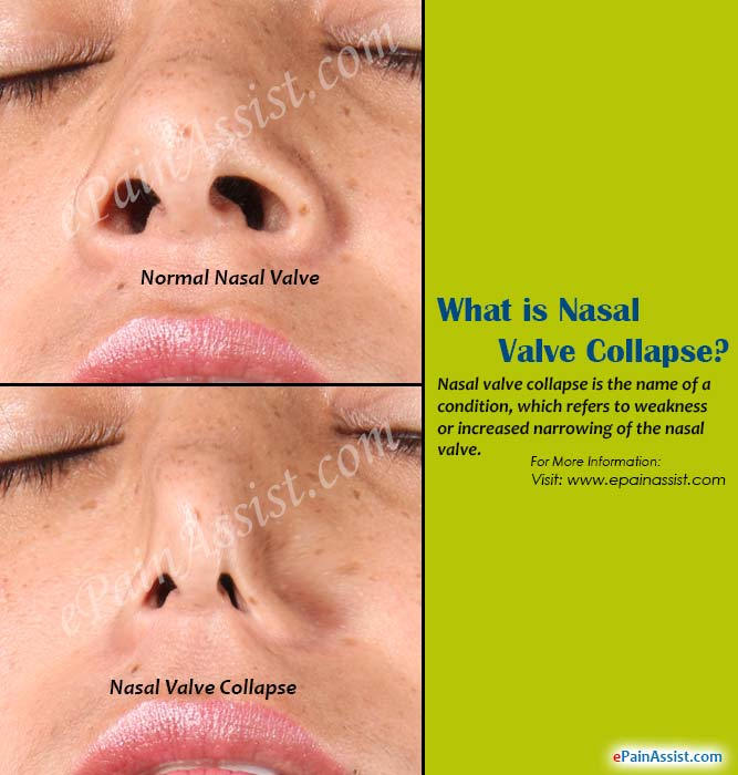 What is Nasal Valve Collapse?