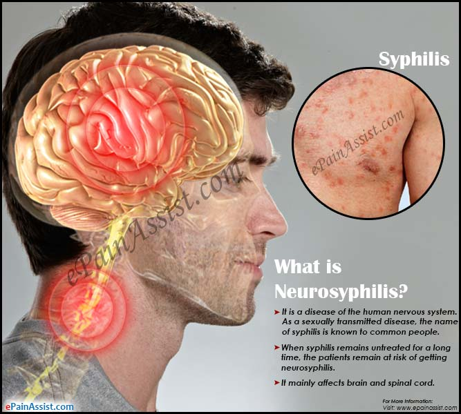 What is Neurosyphilis?