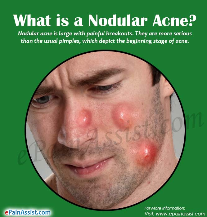 What is a Nodular Acne?