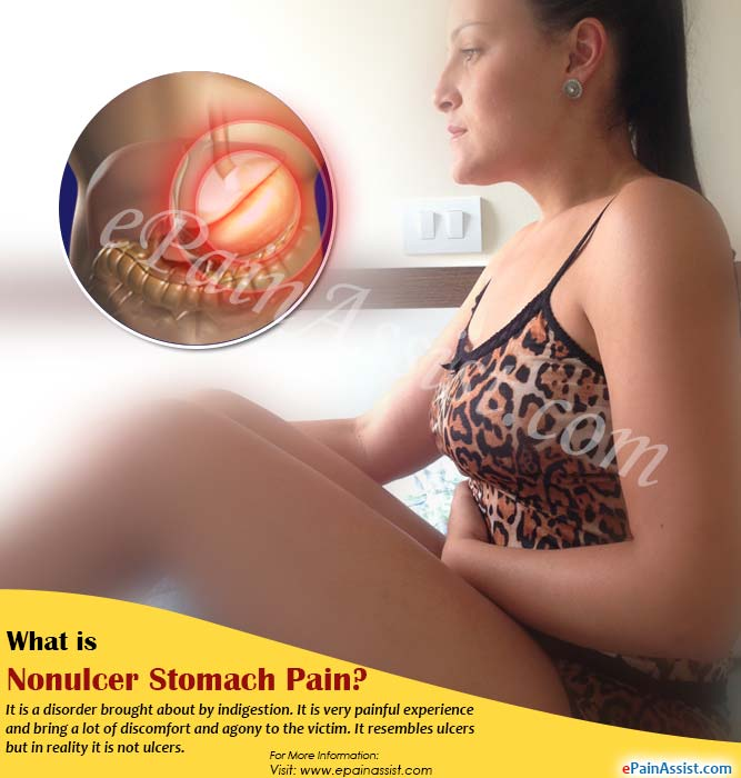 What is Nonulcer Stomach Pain or Functional Dyspepsia?