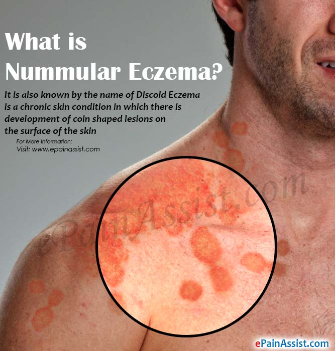 Nummular Eczema Causes Symptoms Treatment Is It Contagious