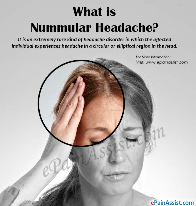What is Nummular Headache?